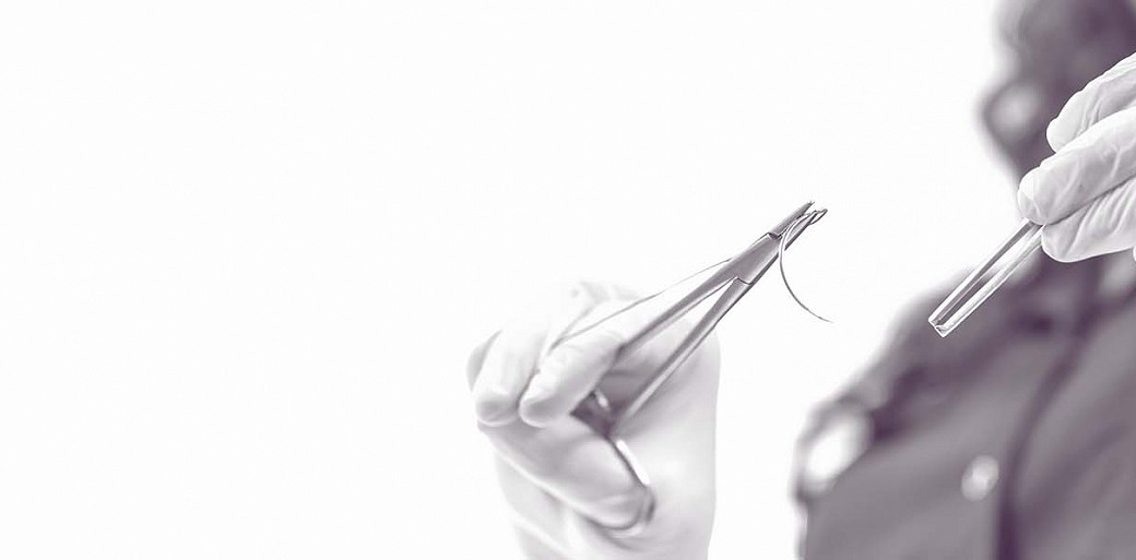Doctor holding surgical forceps suture needle, suturing material